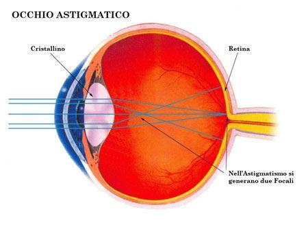 occhio-astigmatismo-PICC